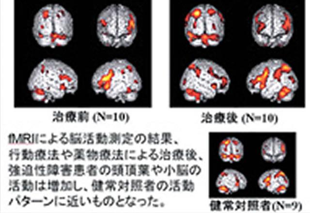 精神科神経科 | 内科系 | 診療科 | 九州大学病院